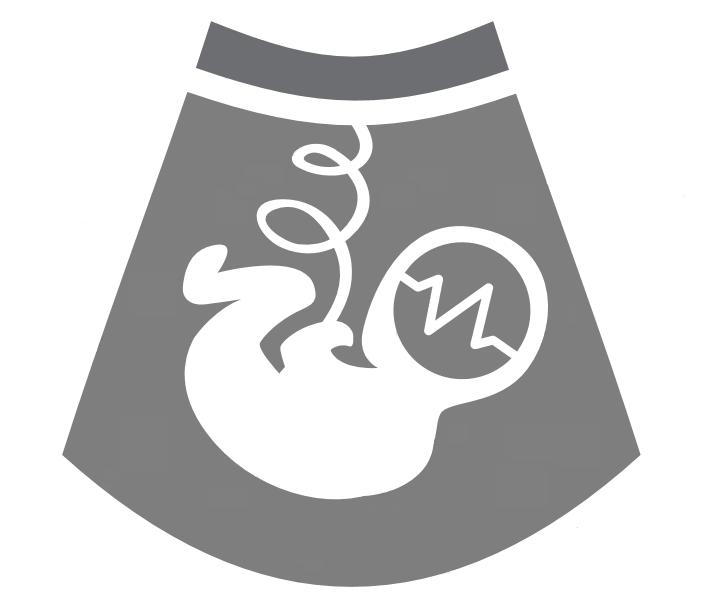 Onderzoek naar groeibeperking tijdens de zwangerschap